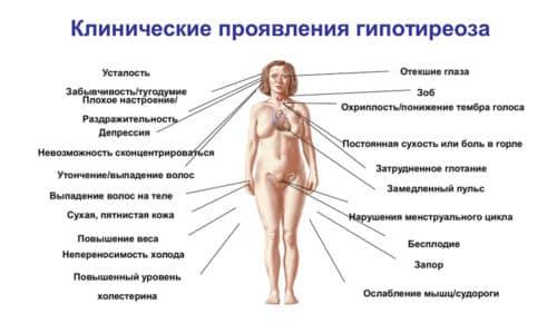 Вследствие гипотиреоза происходит нарушение работы данных органов, изменяется анатомическая структура