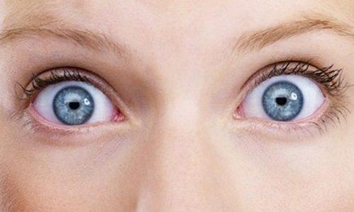 Помимо всех перечисленных симптомов повышенный уровень гормонов влияет на зрение из-за выпячивания глаз