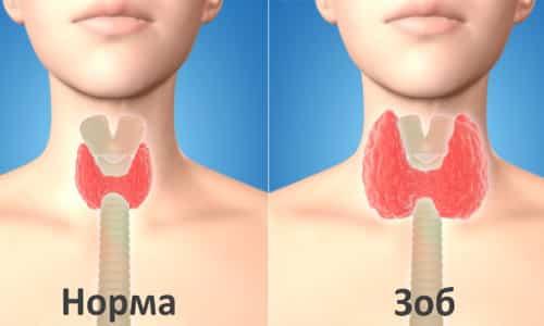 Когда в слаженной работе системы происходят отрицательные изменения, иммунная система начинает вести себя агрессивно по отношению к родному органу человека (щитовидной железе)