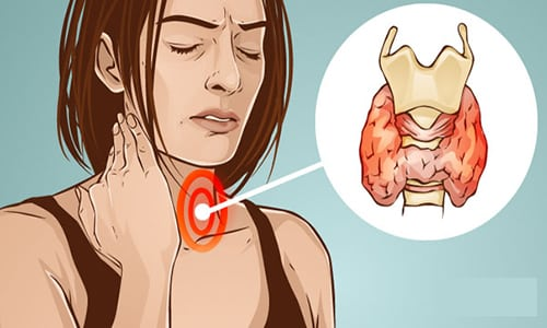 На начальных этапах воспаление щитовидной железы можно спутать с легкой простудой или последствиями растяжения мышц шеи