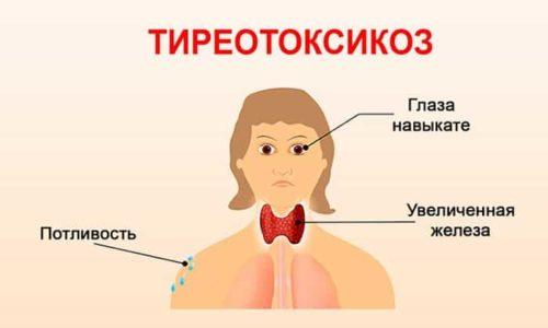Симптомы тиреотоксикоза