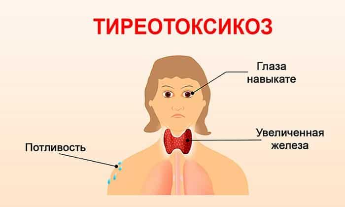 может ли голова болеть от щитовидной железы