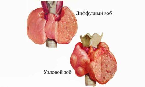 Узловая гиперплазия характеризуется неравномерным разрастанием клеток органа. Из-за этого образуются плотные узлы