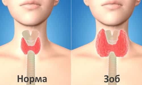 Увеличение щитовидной железы говорит о появившейся патологии. Это довольно опасное явление, так как оно может привести к печальным последствиям