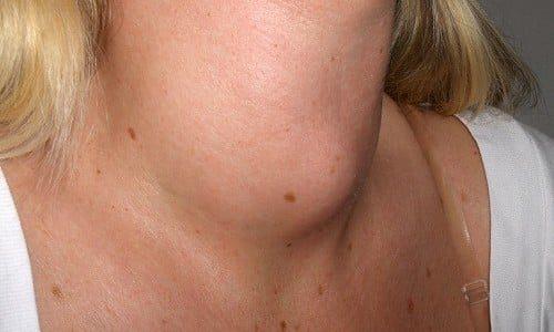 Часто гипертиреоз является следствием диффузного токсического зоба, токсической аденомы