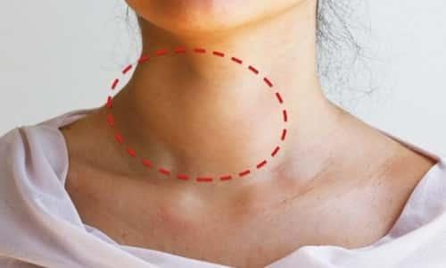 Чем больше опухоль на щитовидной железе, тем легче ее можно заметить: она имеет вид уплотнения или выпуклости.