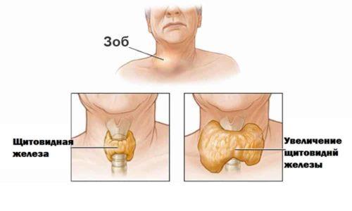 Схема узлов щитовидной железы