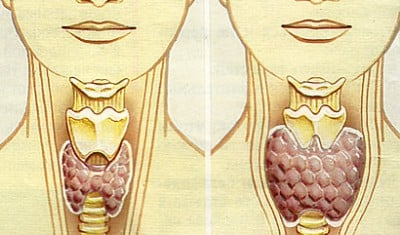 анализы для выявления паразитов в организме человека