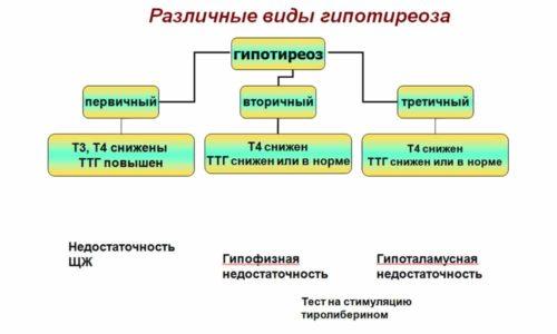 Врачи выделяют два вида заболевания: первичный и вторичный гипотиреоз
