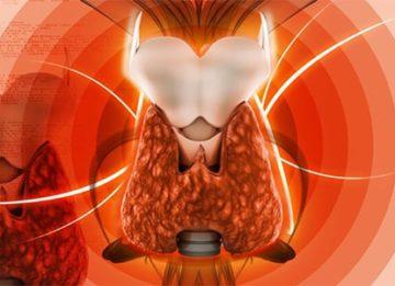 Особенности протекания и лечения тиреотоксикоза манифестного