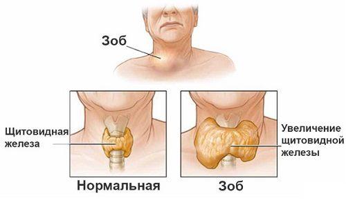 75% всех случаев гиперфункции щитовидной железы связаны именно с токсическим зобом
