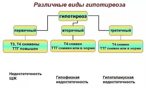 Различные виды гипотиреоза