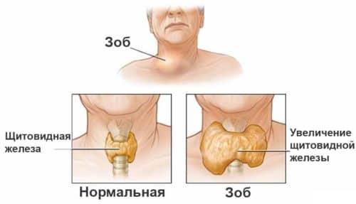 На поздних стадиях заболевания наблюдается увеличение одной доли или всей железы