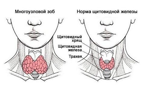 Под многоузловым зобом понимается заболевание, при котором в щитовидной железе образуется более 2 узлов размером от 10 мм. Происхождение и строение этих новообразований может быть различным