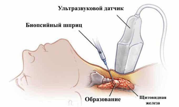 При возникновении подозрений на рак назначается тонкоигольная биопсия, при которой производится забор коллоидного содержимого железы
