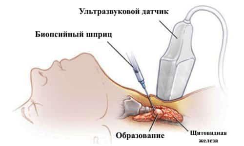 Пункция проводится с помощью тонкой и длинной иглы. Для начала врач определяет точную локализацию узла на щитовидной железе, применяя УЗИ