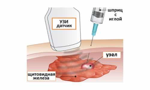 Если узел с нечеткими контурами, назначают дополнительный анализ - гистологическое и цитологическое исследование содержимого