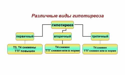 Встречаются 3 вида синдрома: первичный, вторичный и третичный
