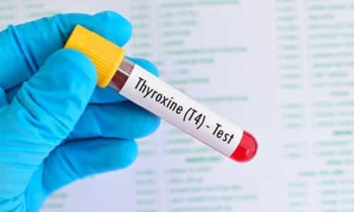 Больному назначаются препараты на основе натуральных и синтетических гормонов, например, Т4