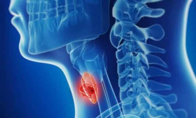 Появление заболевания провоцируют воспалительные процессы в щитовидной железе