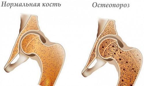 Если щитовидная железа вырабатывает мало основных гормонов, возможно развитие остеопороза