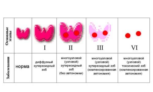 При нулевой щитовидная железа не увеличивается; первая стадия характеризуется незначительным разрастанием ее долей; на 2 возникают проблемы при глотании; на 3 - косметический дефект в области шеи; 4 и 5 степени характеризуются компрессионным синдромом