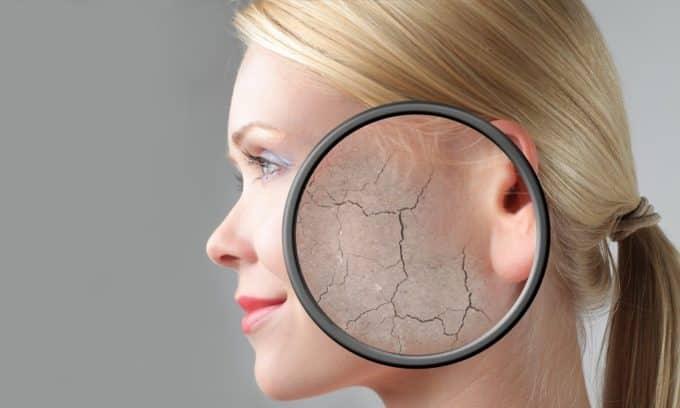 Сухая кожа - один из распространенных признаков гипотиреоза