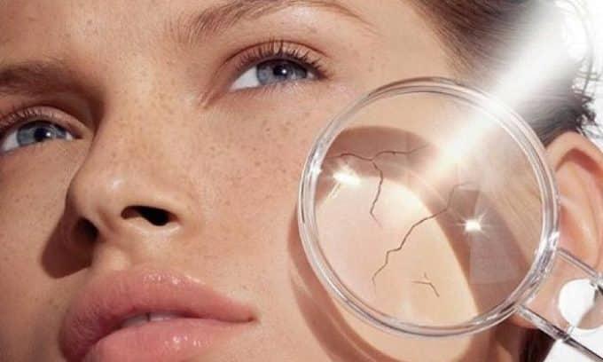 При гипотиреозе появляется сухость кожи