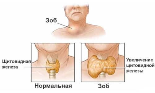 Снижение функциональных способностей щитовидки приводит к увеличению ее объемов и образованию фиброзных тканей