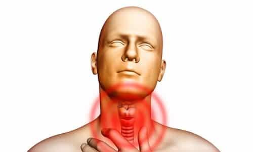 Щитовидная железа производит и выделяет в кровь гормоны, при избытке которых возникает болезненное состояние - гипертиреоз