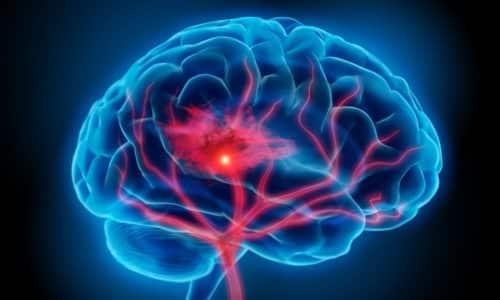 Нарушение памяти является симптомом проявления недостаточной выработки тиреотропных гормонов
