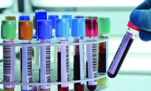 Исследование крови на антитела к тиреоглобулину помогает исключить аутоиммунные патологии