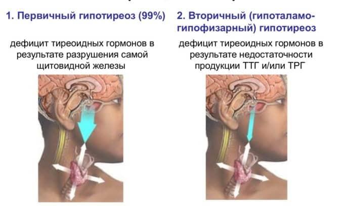 Гипотиреоз у пациентов развивается при дисфункции щитовидной железы и бывает двух видов