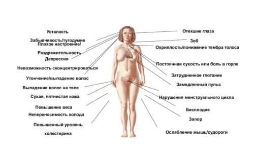 Гипертиреоз характерен для начальной стадии тиреоидита Хашимото