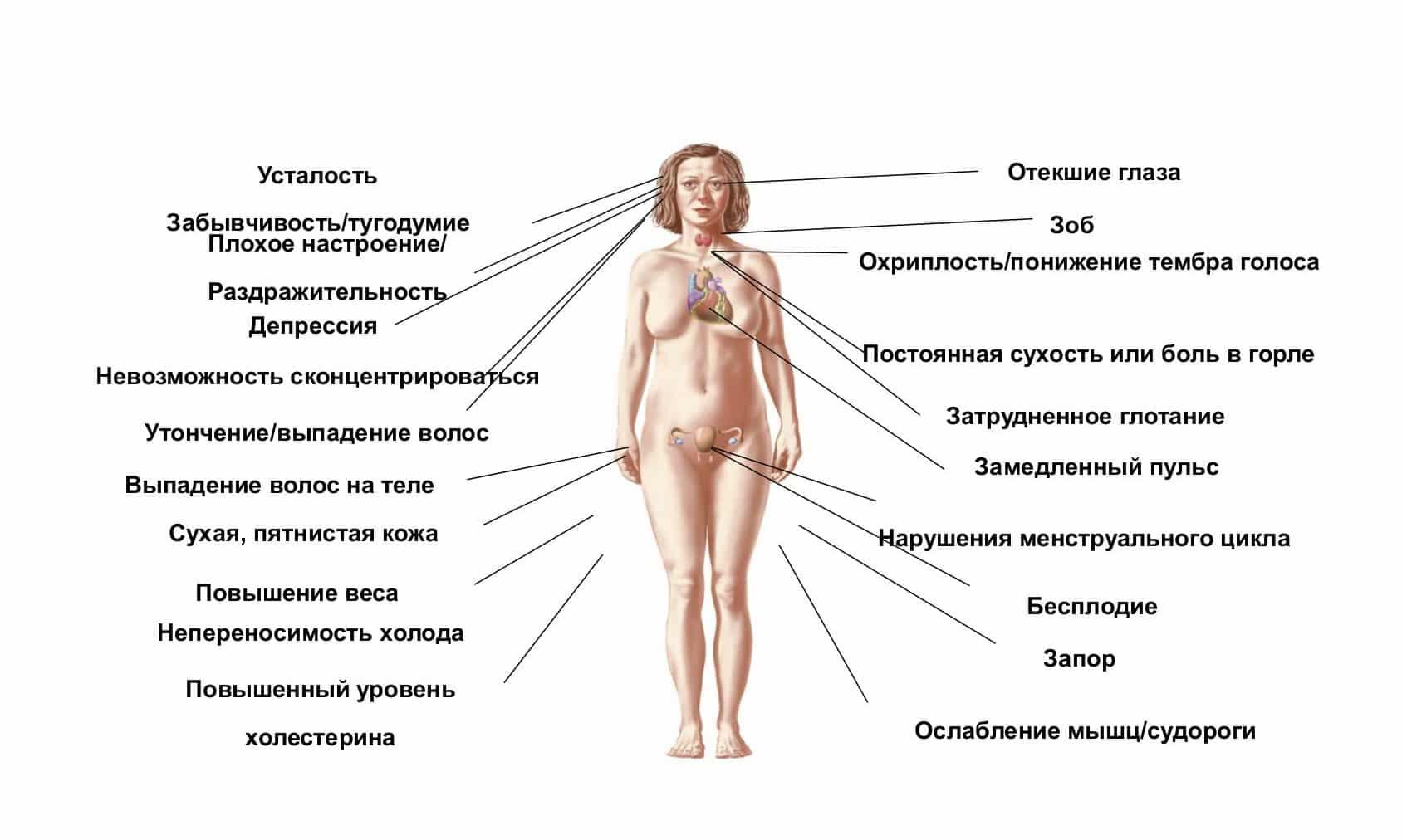 гипо и гипертиреоз картинки данной