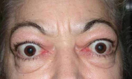 Характерным симптомом данной болезни является эндокринная офтальмопатия, которая выражается в пучеглазии