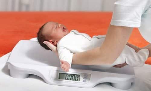 Плохой набор веса один из симптомов кретинизма у младенца