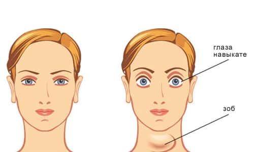Третья степень диффузного зоба характеризуется выпученными глазными яблоками