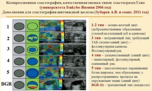 Эластография щитовидной железы - это высокоэффективный способ диагностики щитовидного органа, который позволяет выявить наличие образований злокачественного характера