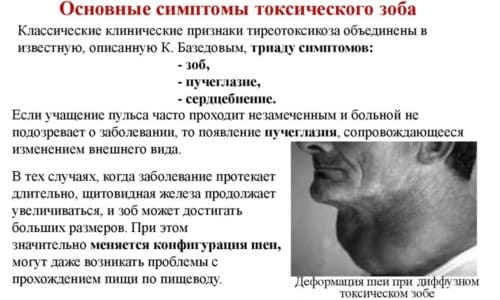Токсическим узловым зобом называется патологическое состояние, сопровождающееся образованием единичных или множественных уплотнений в щитовидной железе и повышением количества вырабатываемых органом гормонов