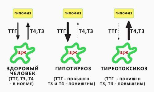 Преобладающая часть клеток щитовидной железы (ЩЖ) вырабатывает гормон Т4 (тироксин) и гормон Т3 (трийодтиронин)