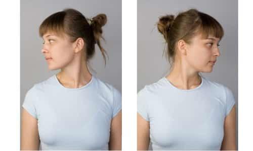 При зобе полезно проводить гимнастику: повороты шеи налево и направо