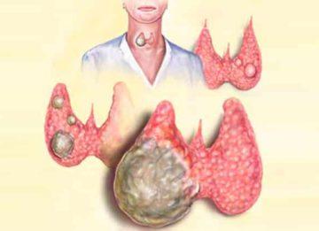 Что такое фокальные изменения в щитовидной железе?