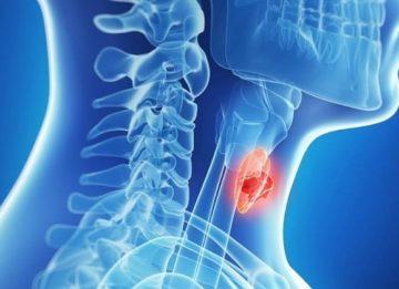 Что такое кальцинаты в щитовидной железе?