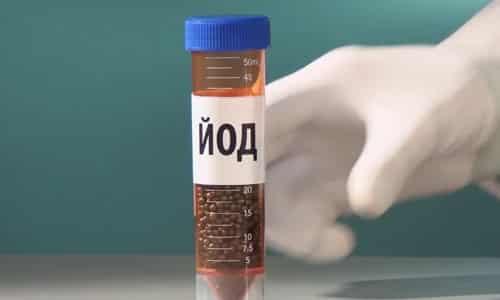 Лечение радиоактивным изотопом йода применяется при узловом токсическом зобе и является хорошей альтернативой хирургическому вмешательству