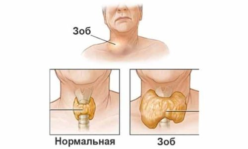 Эндемический зоб это когда размер органа может увеличиваться при разрастании тканей, не сопровождающемся нарушением выработки гормонов