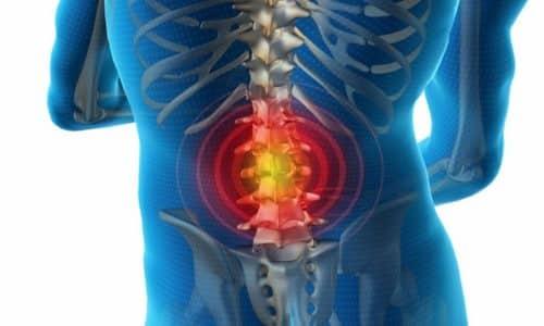 Диклофенак натрия показан к применению при острой боли в пояснице и других отделах спины