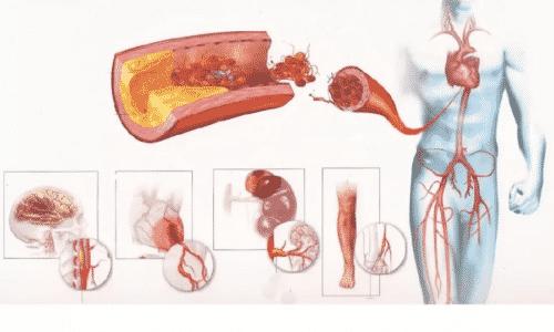 Масляный раствор противопоказано употреблять при кардиосклерозе