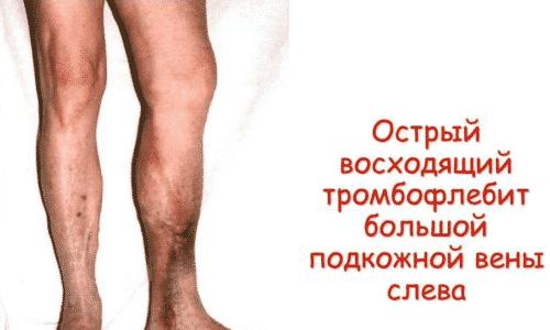 Если увеличивать дозу до 600 мг в день в течение длительного времени, может возникнуть тромбофлебит