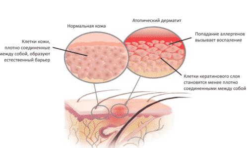 Противопоказание при наружном применении - дерматит